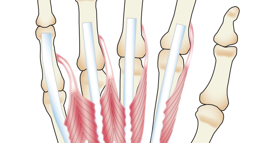 Body Anatomy: Upper Extremity Muscles | The Hand Society