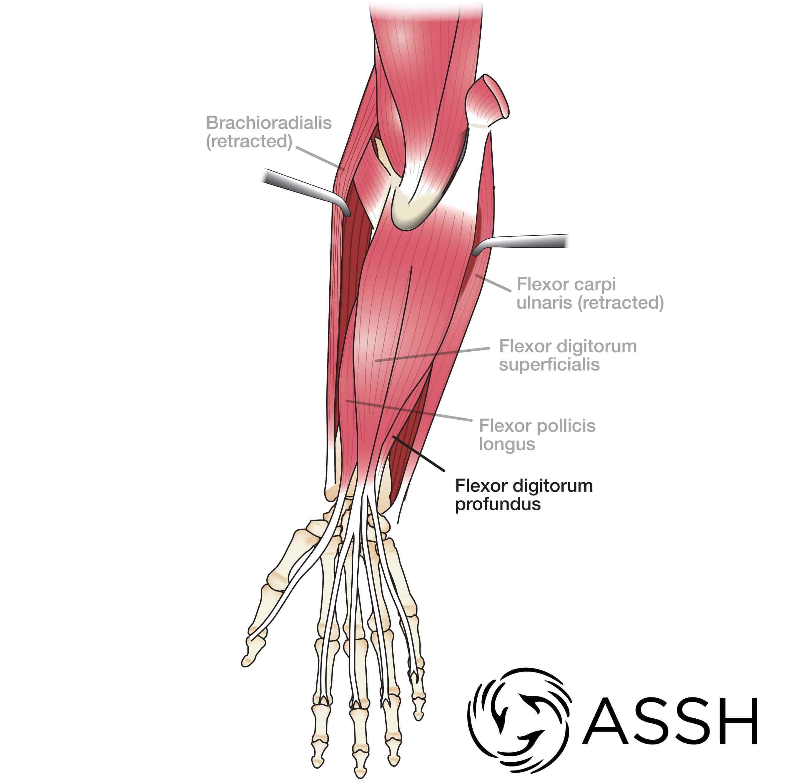 arm tendons diagram body anatomy upper extremity tendons the hand society  body anatomy upper extremity tendons
